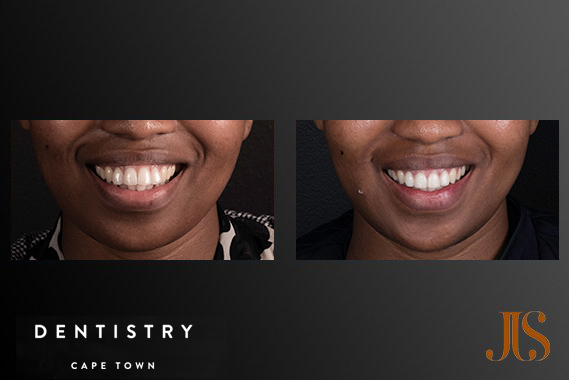 Orthodontics Cape Town