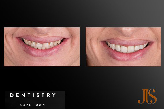 Cape Town Cosmetic Dentistry