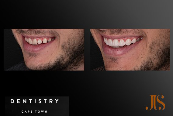 Cosmetic Dentistry South Africa