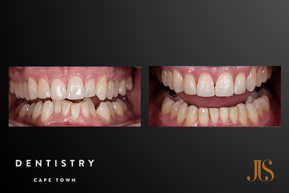 Cape Town Orthodontics