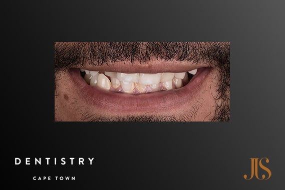 Cosmetic Dentistry Cape Town