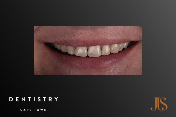 Cosmetic Dentist Cape Town
