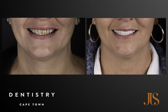 Dental Implants | JJS Dentistry