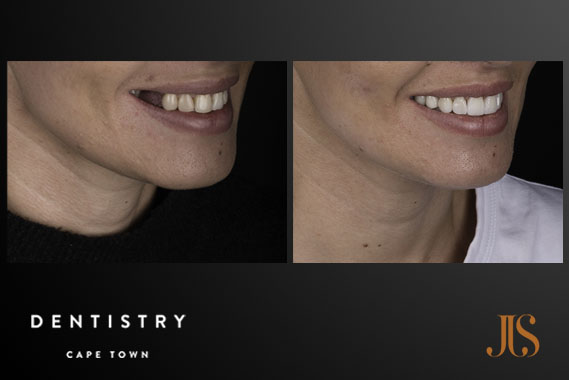 Dental Implants Cape Town | JJS Dentistry