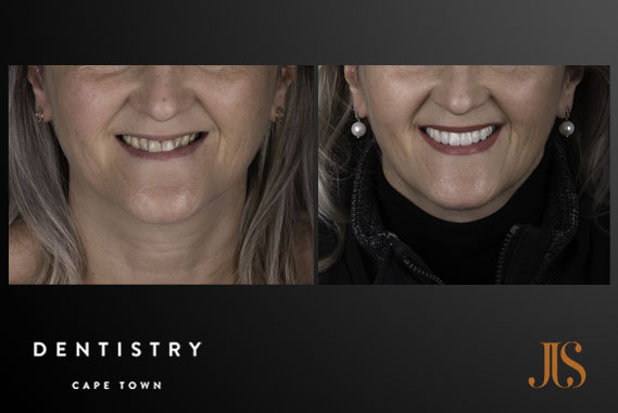 Dental Implants | Dr JJ Serfontein