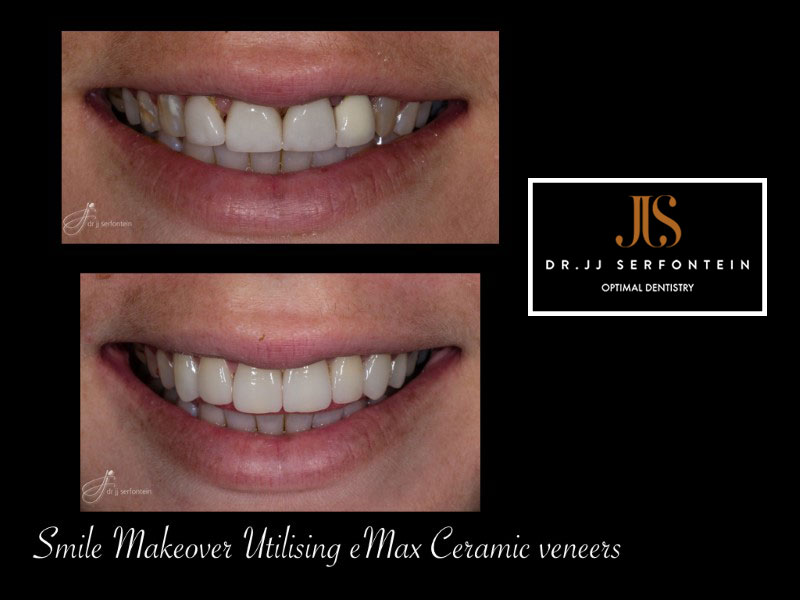 Cosmetic Dentist smile makeover