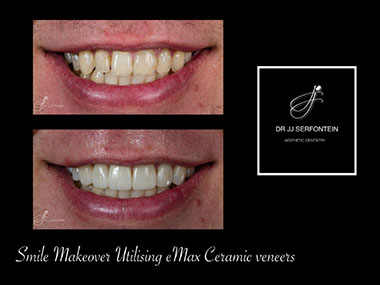Ceramic Veneers Cape Town