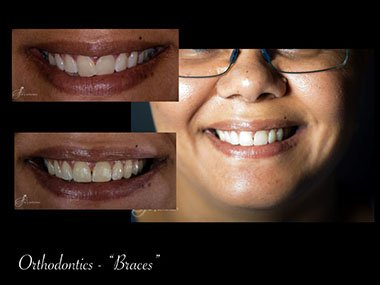 Orthodontist Cape Town