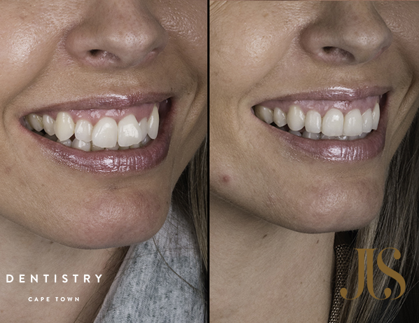 Orthodontist Cape Town | Dr JJ Serfontein