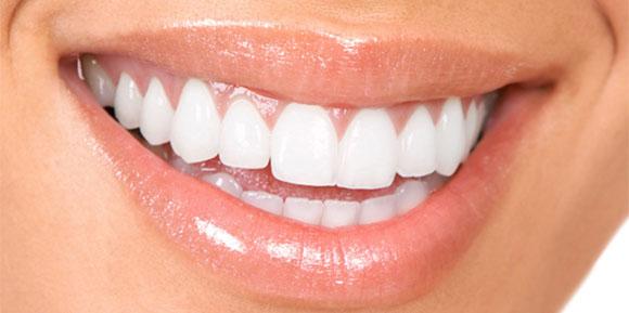 Britesmile Teeth Whitening