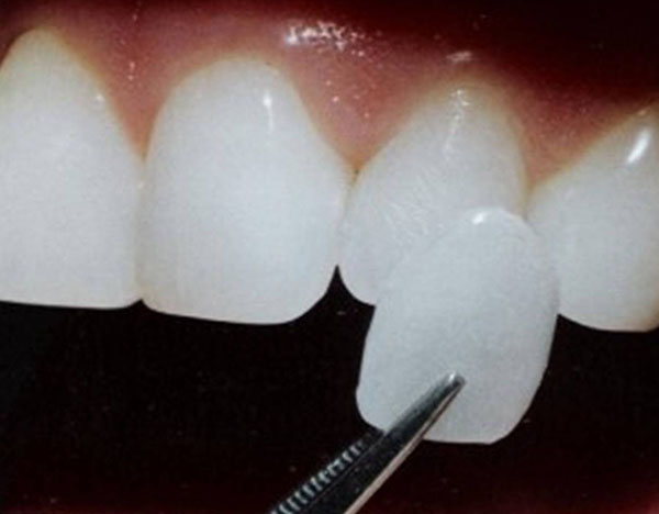 Porcelain Veneers | Correcting Tooth Imperfections
