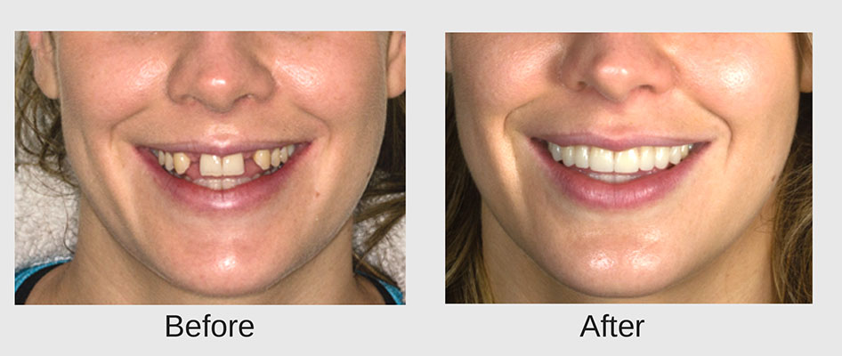 Before and after hollywood smile dentist cape town