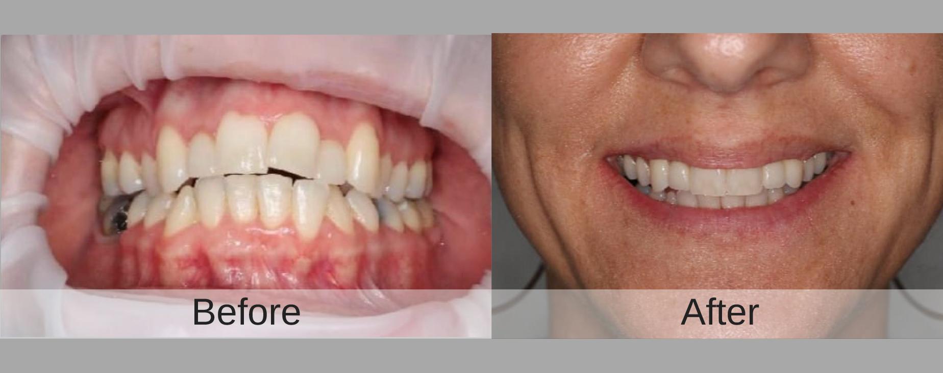 Invisalign | Dentist Cape Town | Dr JJ Serfontein