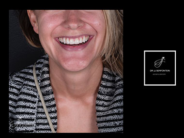 Smile Makeover Cape Town